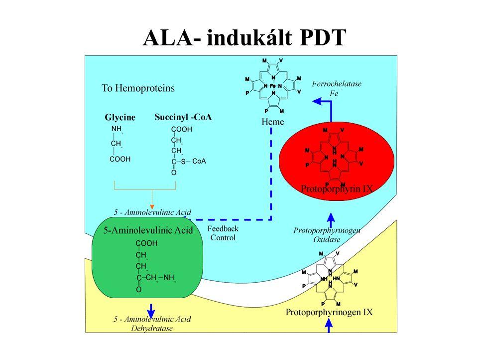 ALA- indukált PDT