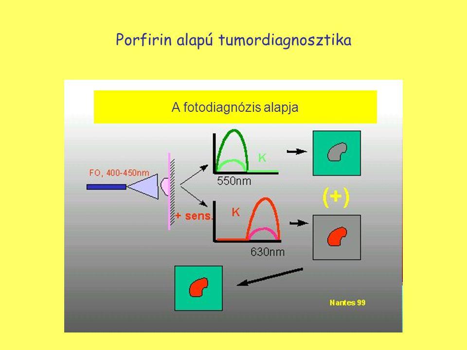 Porfirin alapú tumordiagnosztika A fotodiagnózis alapja
