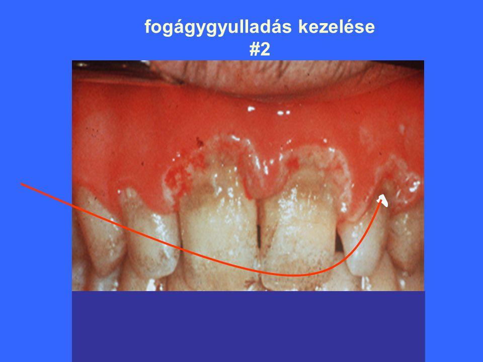 fogágygyulladás kezelése #2 iny alatti régió besugárzása