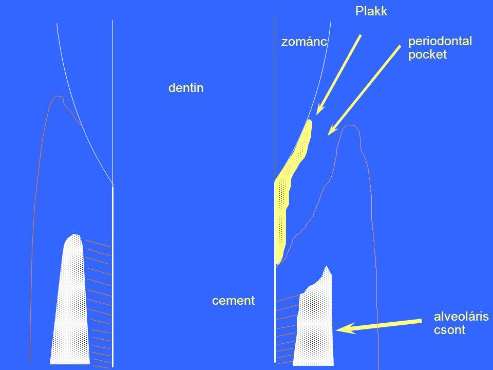 zománc dentin cement alveoláris csont Plakk periodontal pocket