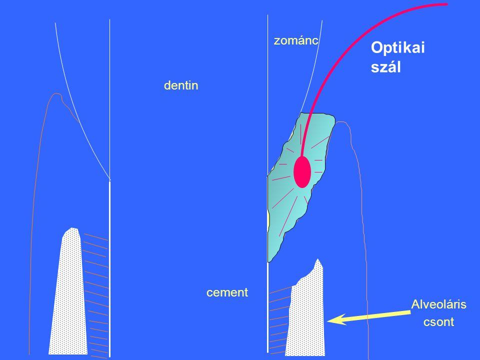 zománc dentin cement Alveoláris csont Optikai szál