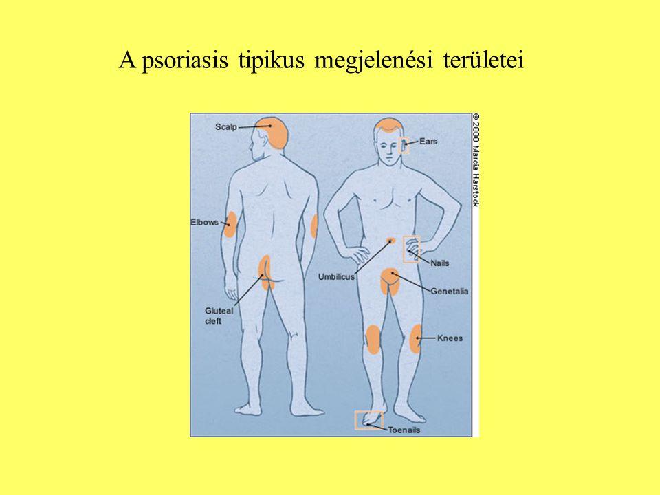A psoriasis tipikus megjelenési területei