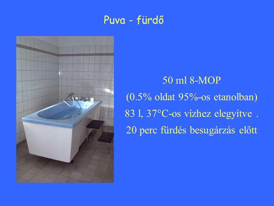 Puva - fürdő 50 ml 8-MOP (0.5% oldat 95%-os etanolban) 83 l, 37°C-os vízhez elegyítve. 20 perc fürdés besugárzás előtt