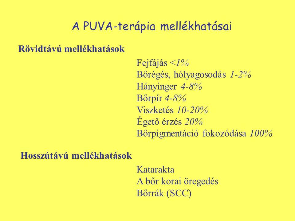 A PUVA-terápia mellékhatásai Fejfájás <1% Bőrégés, hólyagosodás 1-2% Hányinger 4-8% Bőrpír 4-8% Viszketés 10-20% Égető érzés 20% Bőrpigmentáció fokozódása 100% Rövidtávú mellékhatások Hosszútávú mellékhatások Katarakta A bőr korai öregedés Bőrrák (SCC)