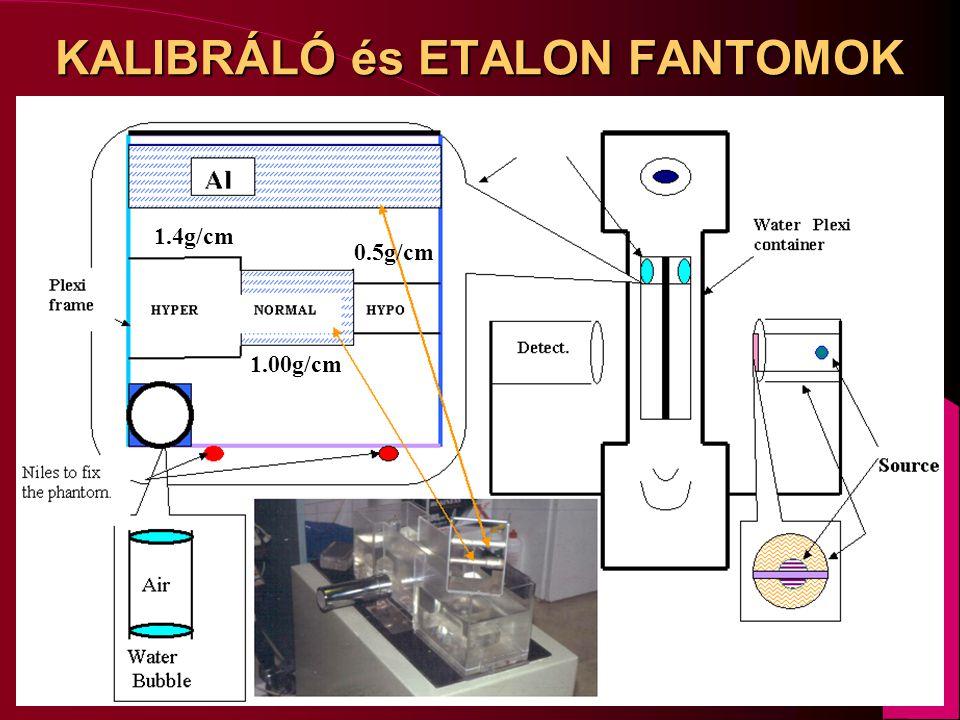 KALIBRÁLÓ és ETALON FANTOMOK 1.4g/cm 1.00g/cm 0.5g/cm