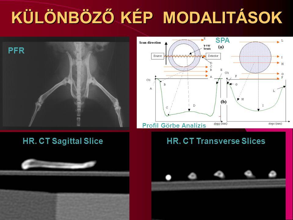 KÜLÖNBÖZŐ KÉP MODALITÁSOK HR. CT Sagittal SliceHR. CT Transverse Slices PFR SPA Profil Görbe Analízis