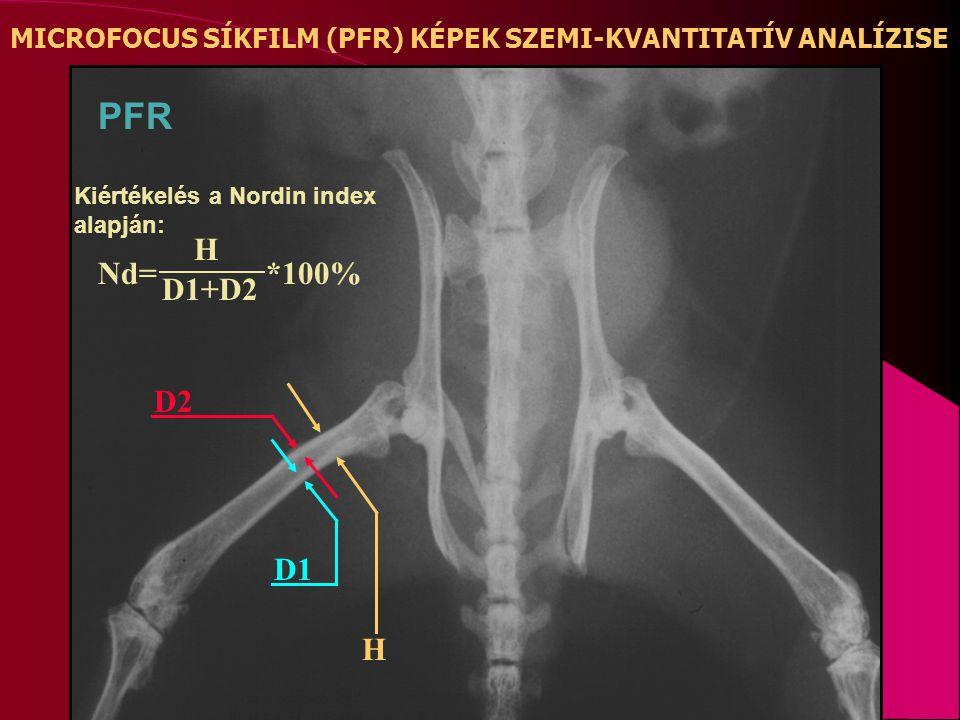 H D1 D2 MICROFOCUS SÍKFILM (PFR) KÉPEK SZEMI-KVANTITATÍV ANALÍZISE PFR Kiértékelés a Nordin index alapján: Nd= H D1+D2 *100%