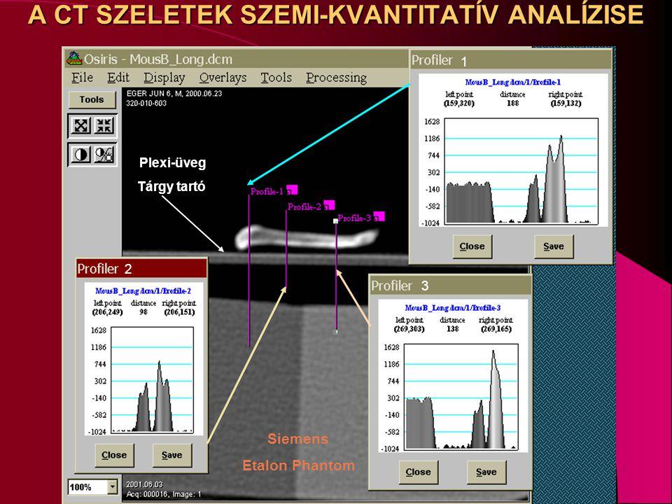 A CT SZELETEK SZEMI-KVANTITATÍV ANALÍZISE 3 2 1 Plexi-üveg Tárgy tartó Siemens Etalon Phantom