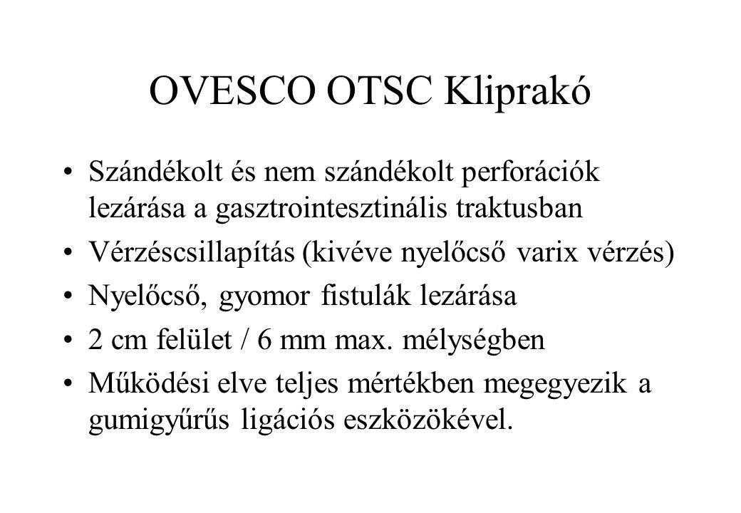 OVESCO OTSC Kliprakó Szándékolt és nem szándékolt perforációk lezárása a gasztrointesztinális traktusban Vérzéscsillapítás (kivéve nyelőcső varix vérz