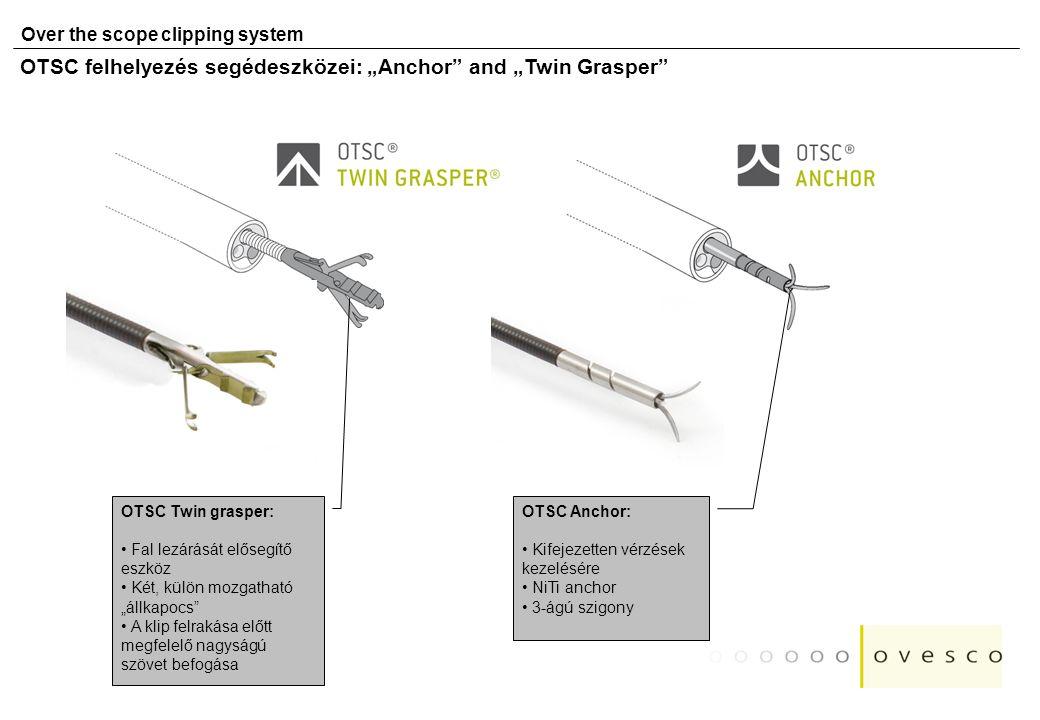 """Over the scope clipping system OTSC felhelyezés segédeszközei: """"Anchor"""" and """"Twin Grasper"""" OTSC Anchor: Kifejezetten vérzések kezelésére NiTi anchor 3"""