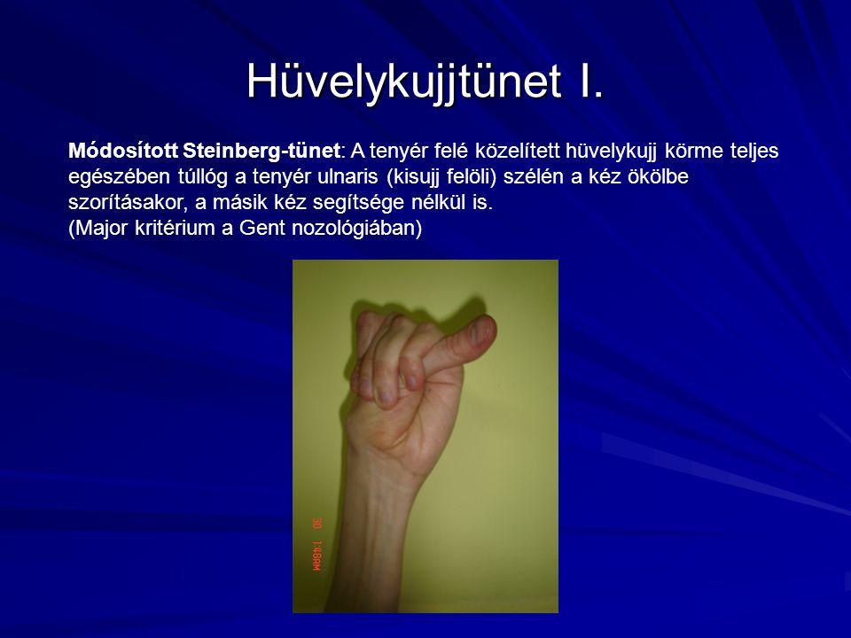 Hüvelykujjtünet I. Módosított Steinberg-tünet: A tenyér felé közelített hüvelykujj körme teljes egészében túllóg a tenyér ulnaris (kisujj felöli) szél