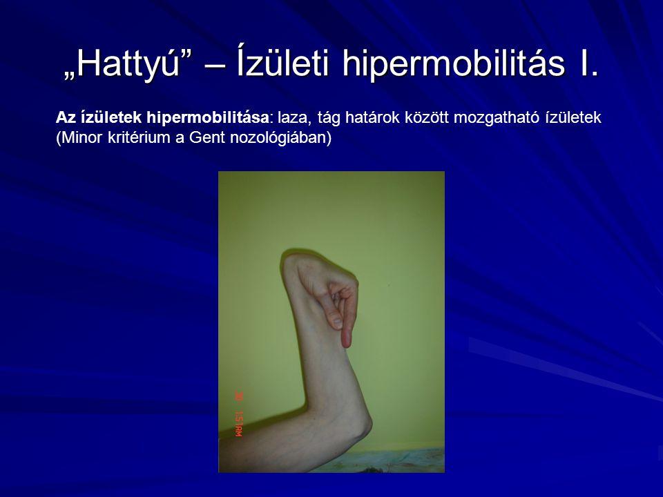 """""""Hattyú"""" – Ízületi hipermobilitás I. Az ízületek hipermobilitása: laza, tág határok között mozgatható ízületek (Minor kritérium a Gent nozológiában)"""