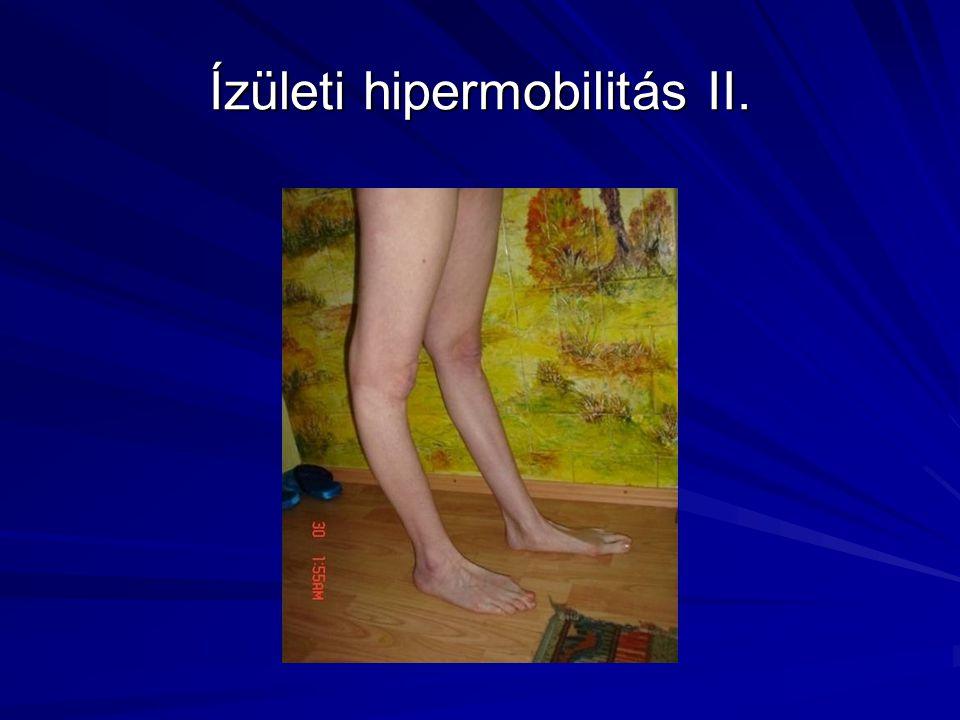 Arachnodactylia A láb- és kézközépcsontok, valamint az ujjpercek (metatarsusok, metacarpusok és a phalanxok) meghosszabbodása következtében a hosszú, vékony ujjak póklábakra emlékeztetnek (pókujjúság, arachnodactylia).