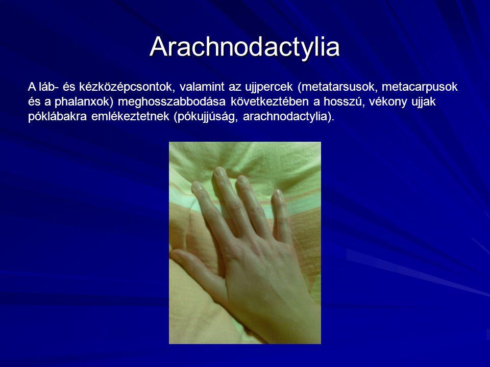 Arachnodactylia A láb- és kézközépcsontok, valamint az ujjpercek (metatarsusok, metacarpusok és a phalanxok) meghosszabbodása következtében a hosszú,
