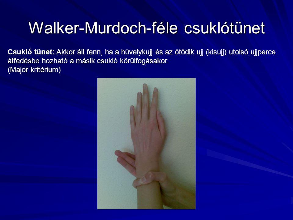 Walker-Murdoch-féle csuklótünet Csukló tünet: Akkor áll fenn, ha a hüvelykujj és az ötödik ujj (kisujj) utolsó ujjperce átfedésbe hozható a másik csuk