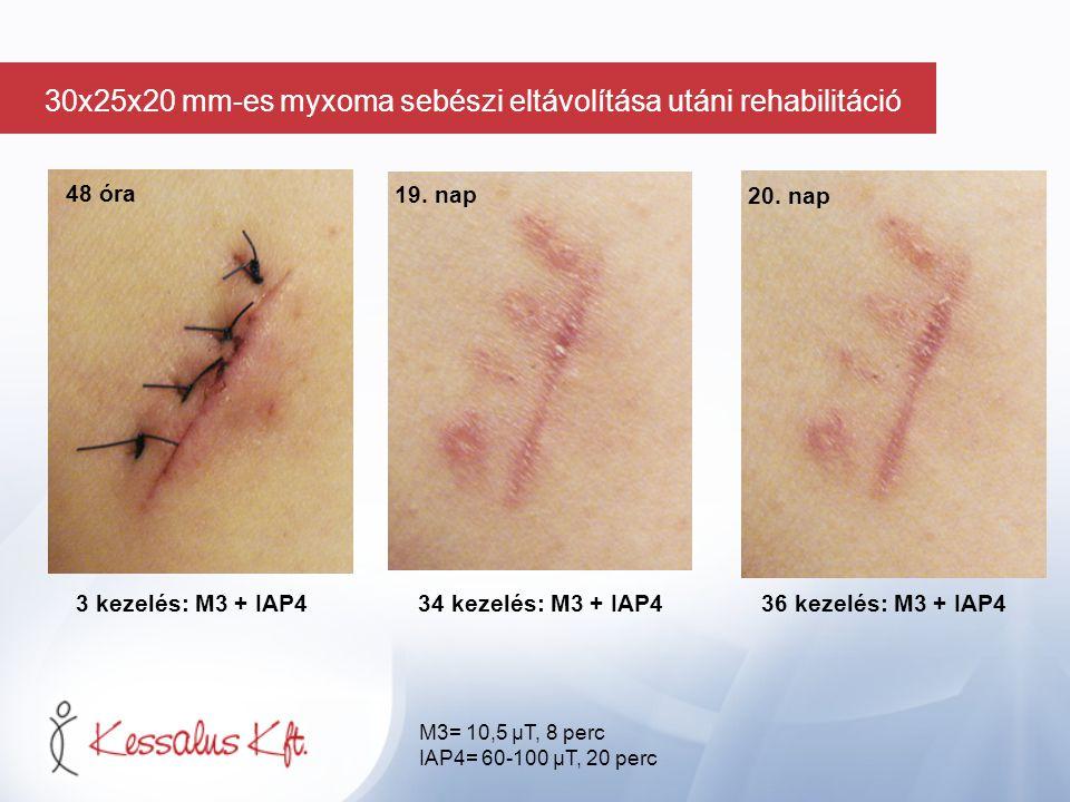 48 óra 3 kezelés: M3 + IAP434 kezelés: M3 + IAP4 36 kezelés: M3 + IAP4 19. nap 20. nap M3= 10,5 µT, 8 perc IAP4= 60-100 µT, 20 perc 30x25x20 mm-es myx