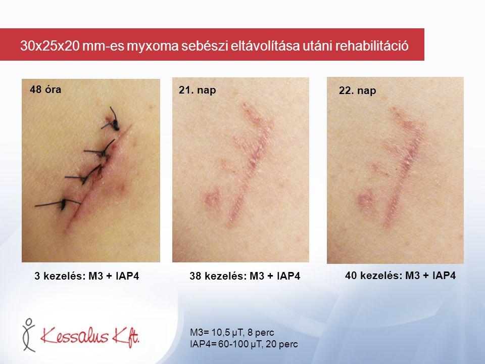 48 óra 3 kezelés: M3 + IAP438 kezelés: M3 + IAP4 40 kezelés: M3 + IAP4 21. nap 22. nap M3= 10,5 µT, 8 perc IAP4= 60-100 µT, 20 perc 30x25x20 mm-es myx