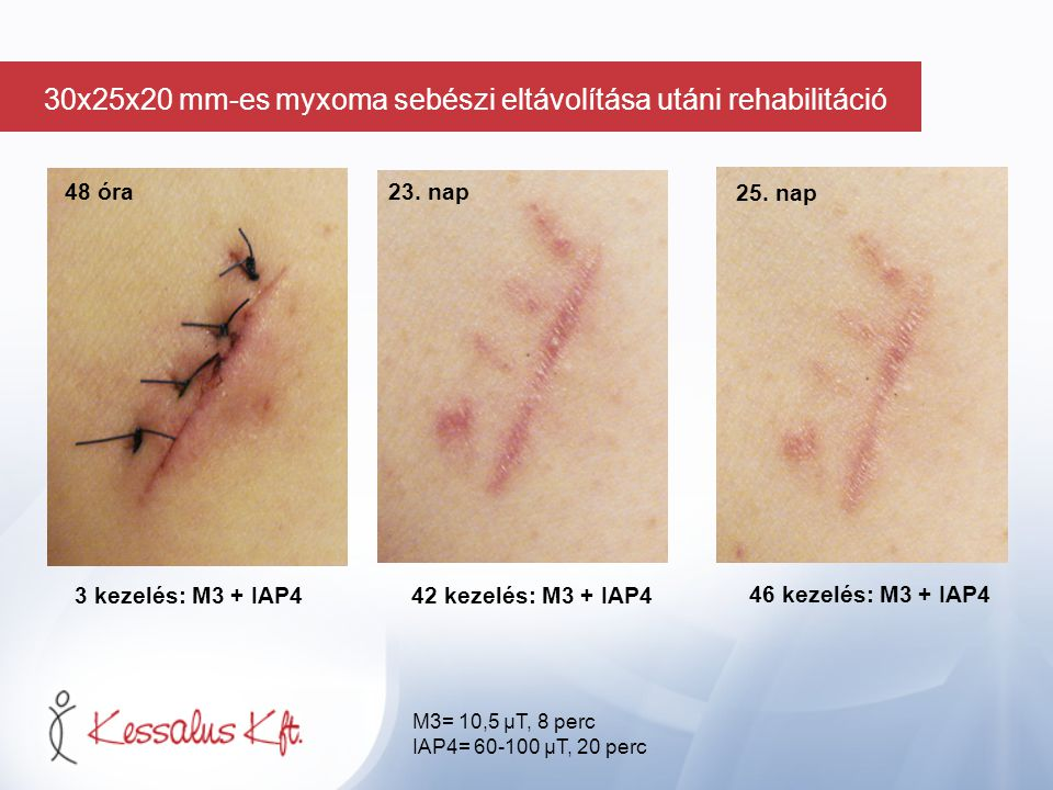 48 óra 3 kezelés: M3 + IAP442 kezelés: M3 + IAP4 46 kezelés: M3 + IAP4 23. nap 25. nap M3= 10,5 µT, 8 perc IAP4= 60-100 µT, 20 perc 30x25x20 mm-es myx