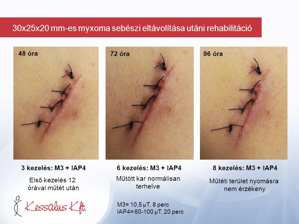 48 óra 3 kezelés: M3 + IAP410 kezelés: M3 + IAP4 12 kezelés: M3 + IAP4 120 óra 144 óra M3= 10,5 µT, 8 perc IAP4= 60-100 µT, 20 perc 30x25x20 mm-es myxoma sebészi eltávolítása utáni rehabilitáció