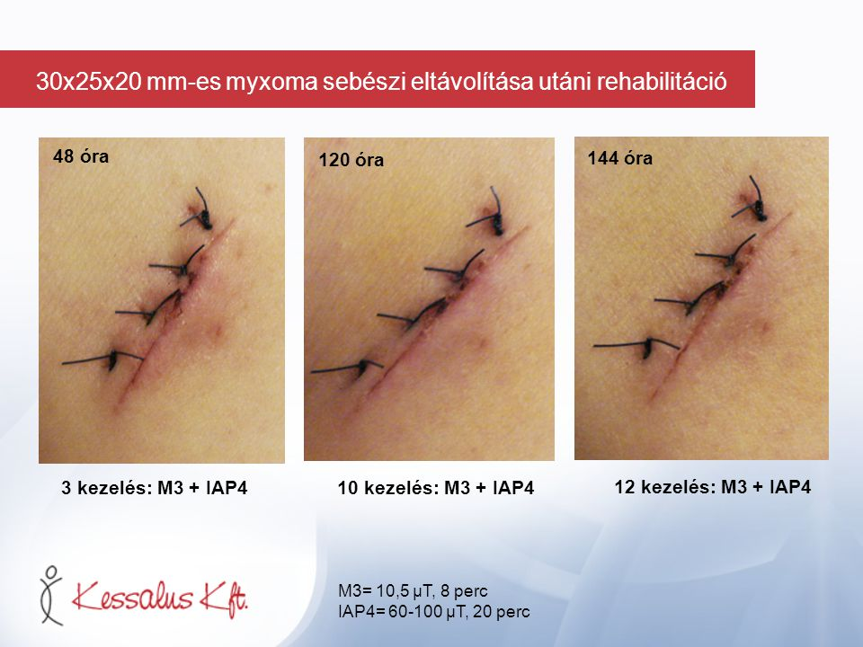 48 óra 3 kezelés: M3 + IAP410 kezelés: M3 + IAP4 12 kezelés: M3 + IAP4 120 óra 144 óra M3= 10,5 µT, 8 perc IAP4= 60-100 µT, 20 perc 30x25x20 mm-es myx