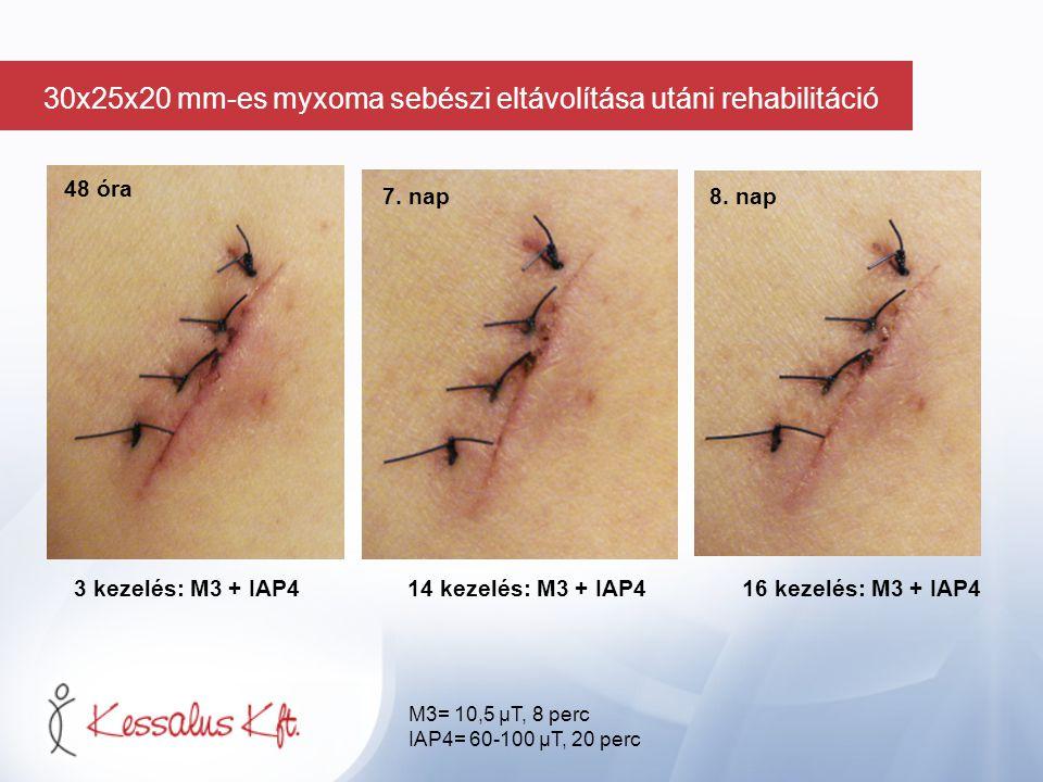 48 óra 3 kezelés: M3 + IAP414 kezelés: M3 + IAP4 16 kezelés: M3 + IAP4 7. nap 8. nap M3= 10,5 µT, 8 perc IAP4= 60-100 µT, 20 perc 30x25x20 mm-es myxom