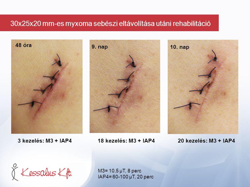 48 óra 3 kezelés: M3 + IAP418 kezelés: M3 + IAP4 20 kezelés: M3 + IAP4 9. nap 10. nap M3= 10,5 µT, 8 perc IAP4= 60-100 µT, 20 perc 30x25x20 mm-es myxo