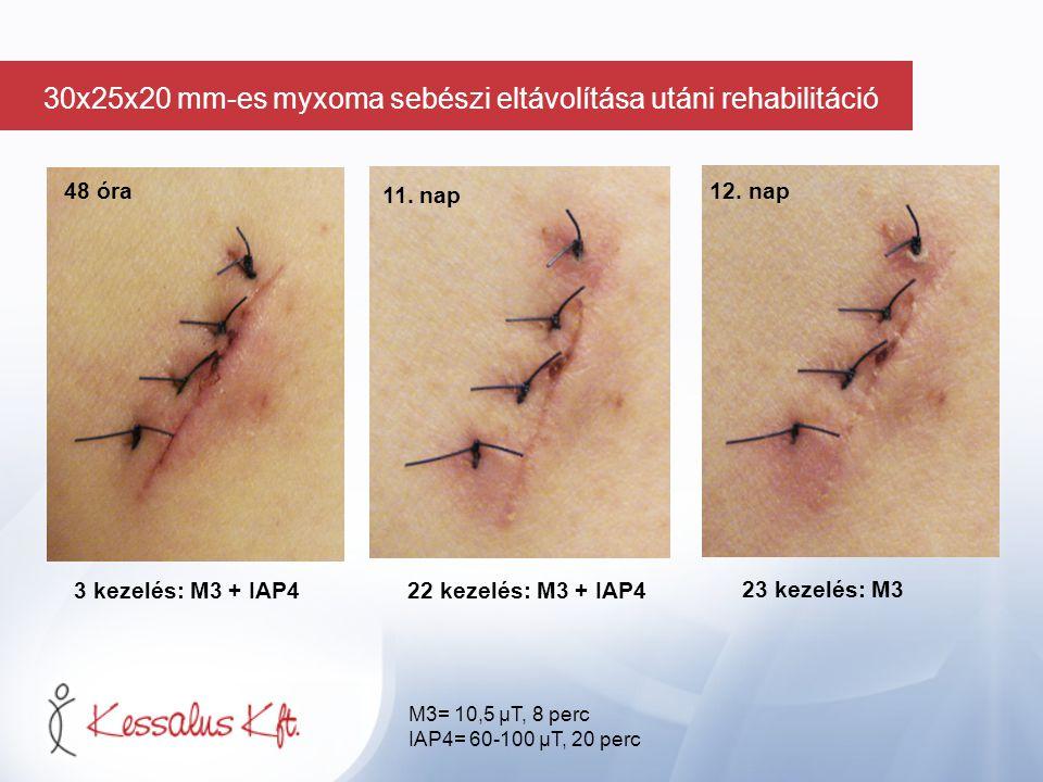 48 óra 3 kezelés: M3 + IAP422 kezelés: M3 + IAP4 23 kezelés: M3 11. nap 12. nap M3= 10,5 µT, 8 perc IAP4= 60-100 µT, 20 perc 30x25x20 mm-es myxoma seb