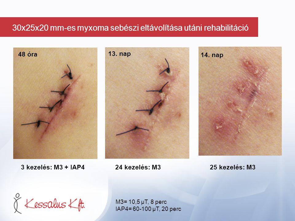 48 óra 3 kezelés: M3 + IAP424 kezelés: M3 25 kezelés: M3 13. nap 14. nap M3= 10,5 µT, 8 perc IAP4= 60-100 µT, 20 perc 30x25x20 mm-es myxoma sebészi el