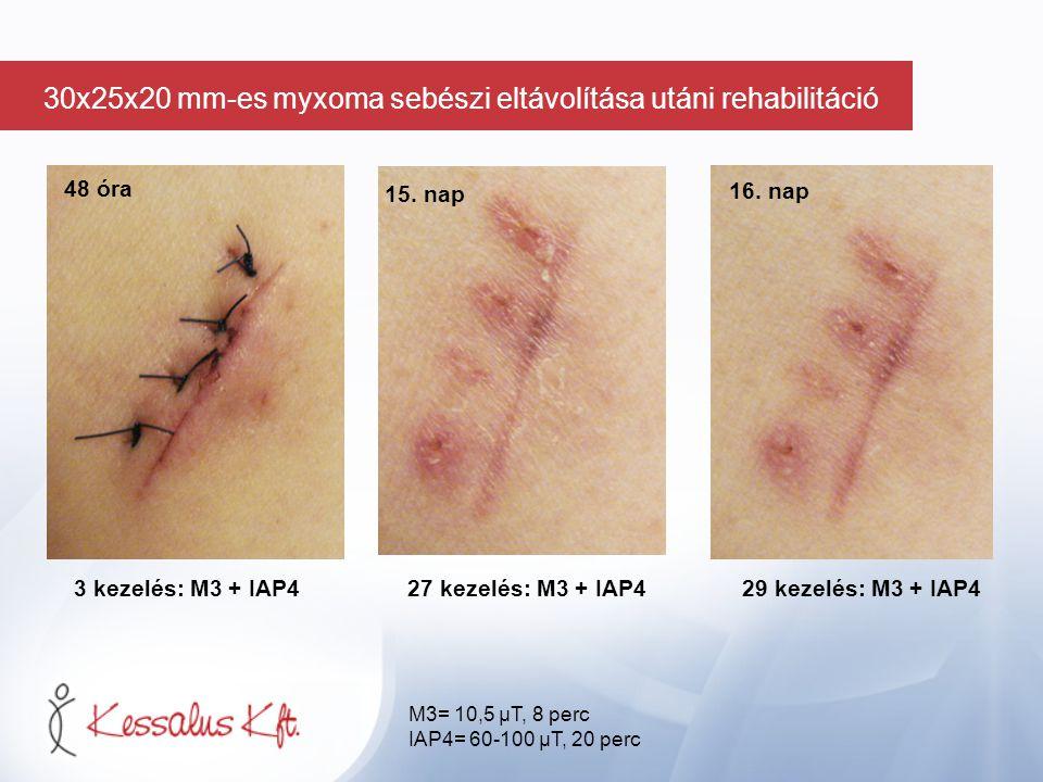 48 óra 3 kezelés: M3 + IAP427 kezelés: M3 + IAP4 29 kezelés: M3 + IAP4 15. nap 16. nap M3= 10,5 µT, 8 perc IAP4= 60-100 µT, 20 perc 30x25x20 mm-es myx