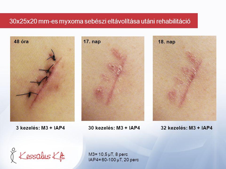 48 óra 3 kezelés: M3 + IAP434 kezelés: M3 + IAP4 36 kezelés: M3 + IAP4 19.