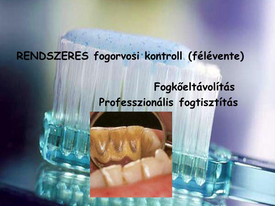 RENDSZERES fogorvosi kontroll (félévente) Fogkőeltávolítás Professzionális fogtisztítás