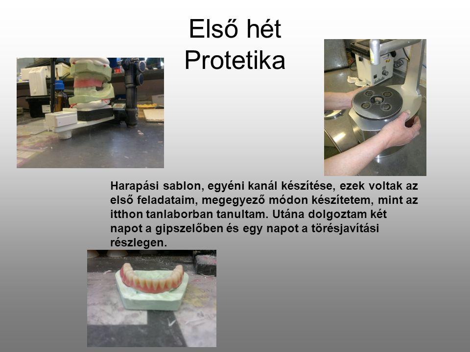 Második hét Protetika (teljes felső és részleges alsó kivehetőfogsor) Öntő akrilátos eljárással készült