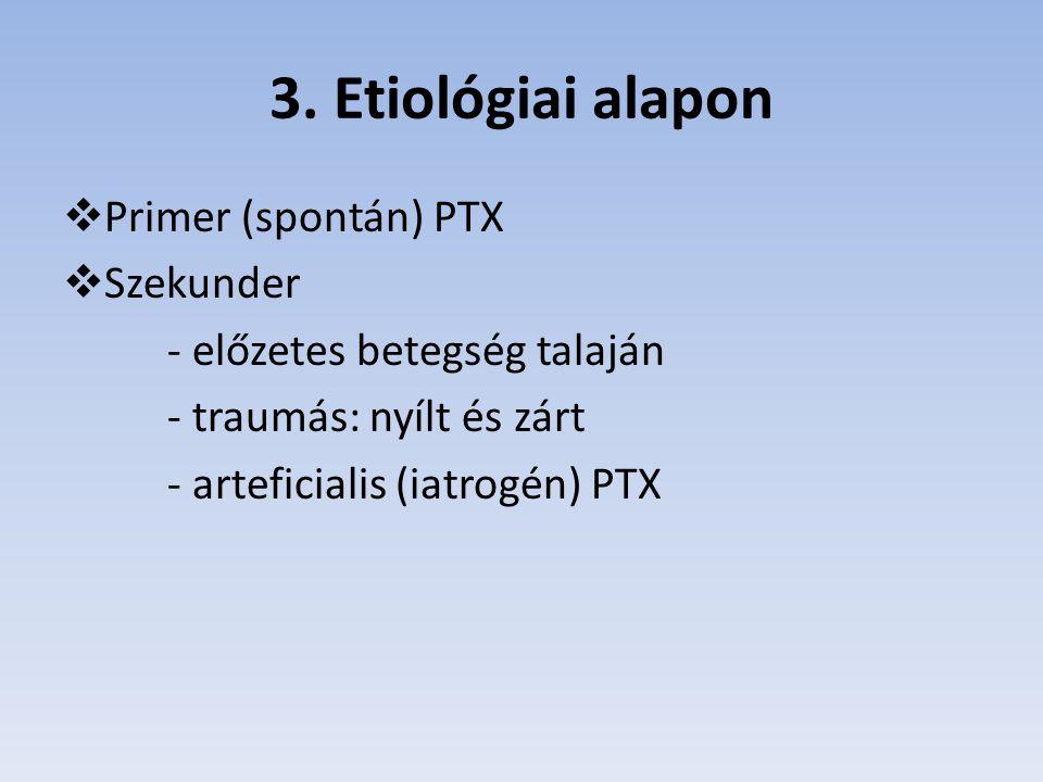 3. Etiológiai alapon  Primer (spontán) PTX  Szekunder - előzetes betegség talaján - traumás: nyílt és zárt - arteficialis (iatrogén) PTX