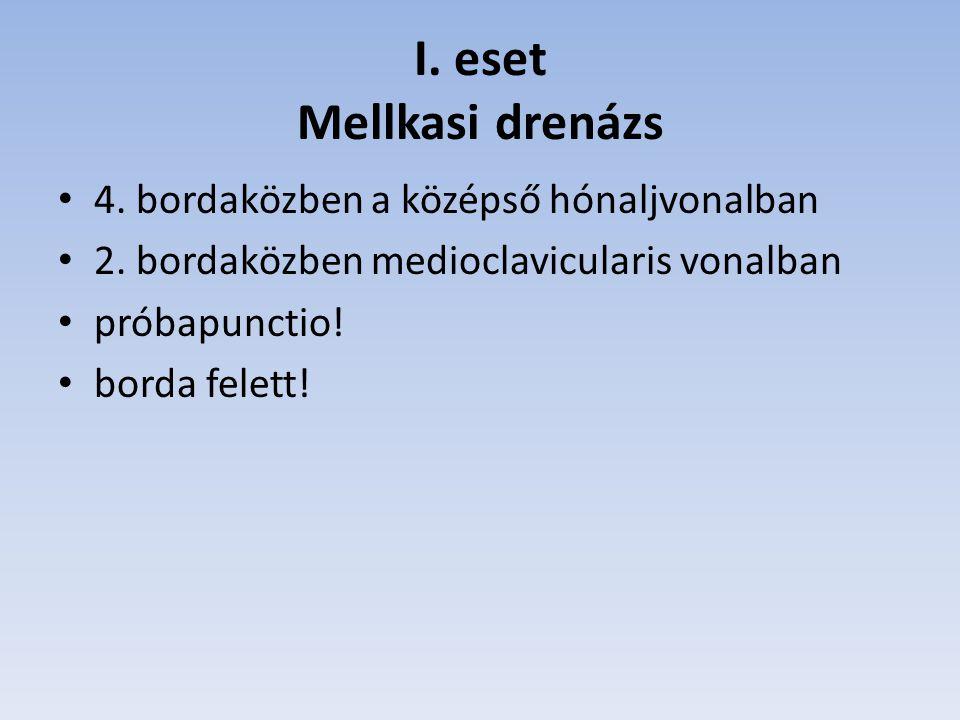 I. eset Mellkasi drenázs 4. bordaközben a középső hónaljvonalban 2. bordaközben medioclavicularis vonalban próbapunctio! borda felett!