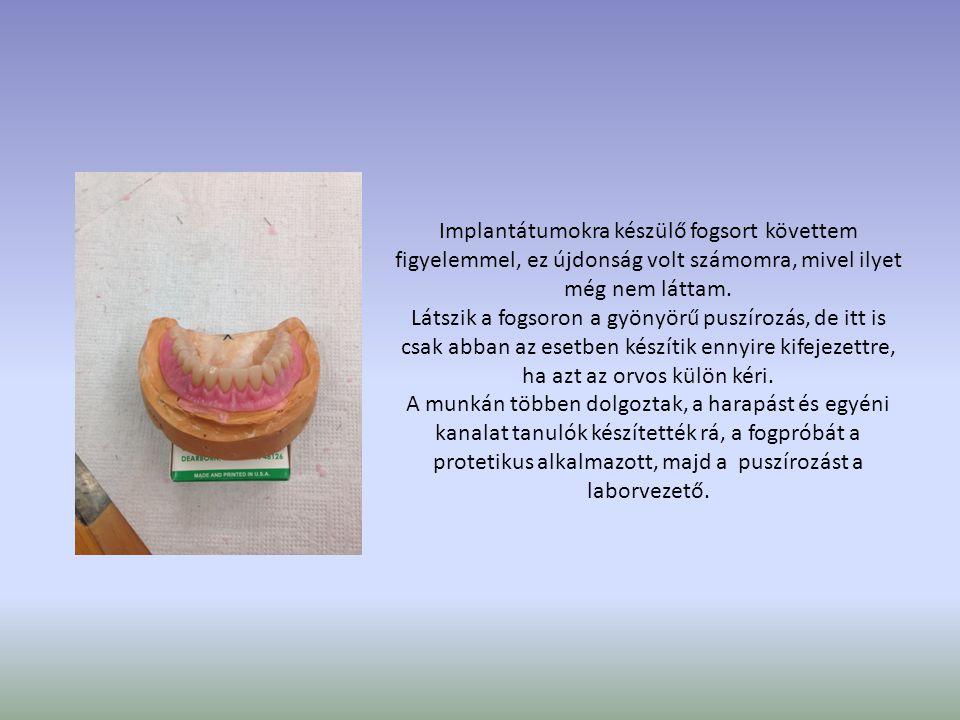 Implantátumokra készülő fogsort követtem figyelemmel, ez újdonság volt számomra, mivel ilyet még nem láttam. Látszik a fogsoron a gyönyörű puszírozás,