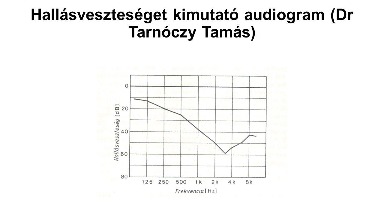Hallásveszteséget kimutató audiogram (Dr Tarnóczy Tamás)
