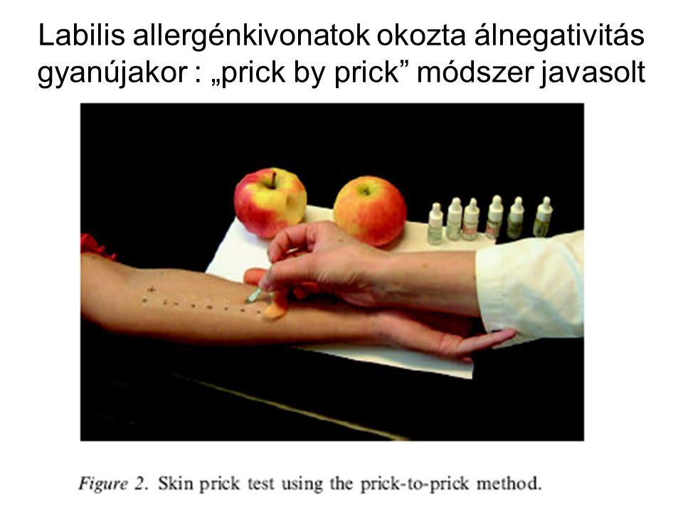 """Labilis allergénkivonatok okozta álnegativitás gyanújakor : """"prick by prick"""" módszer javasolt"""