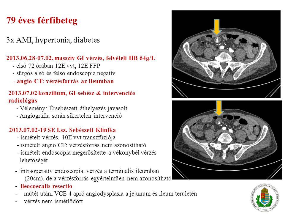 79 éves férfibeteg 3x AMI, hypertonia, diabetes 2013.06.28-07.02. masszív GI vérzés, felvételi HB 64g/L - első 72 órában 12E vvt, 12E FFP - sürgős als