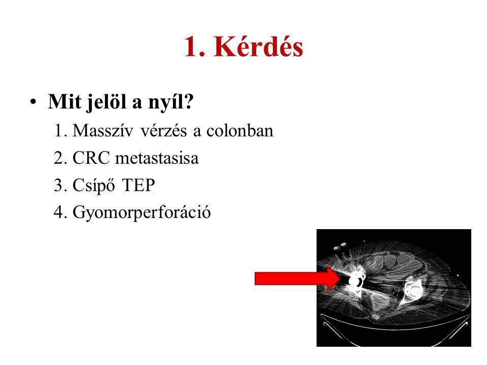 1. Kérdés Mit jelöl a nyíl? 1. Masszív vérzés a colonban 2. CRC metastasisa 3. Csípő TEP 4. Gyomorperforáció