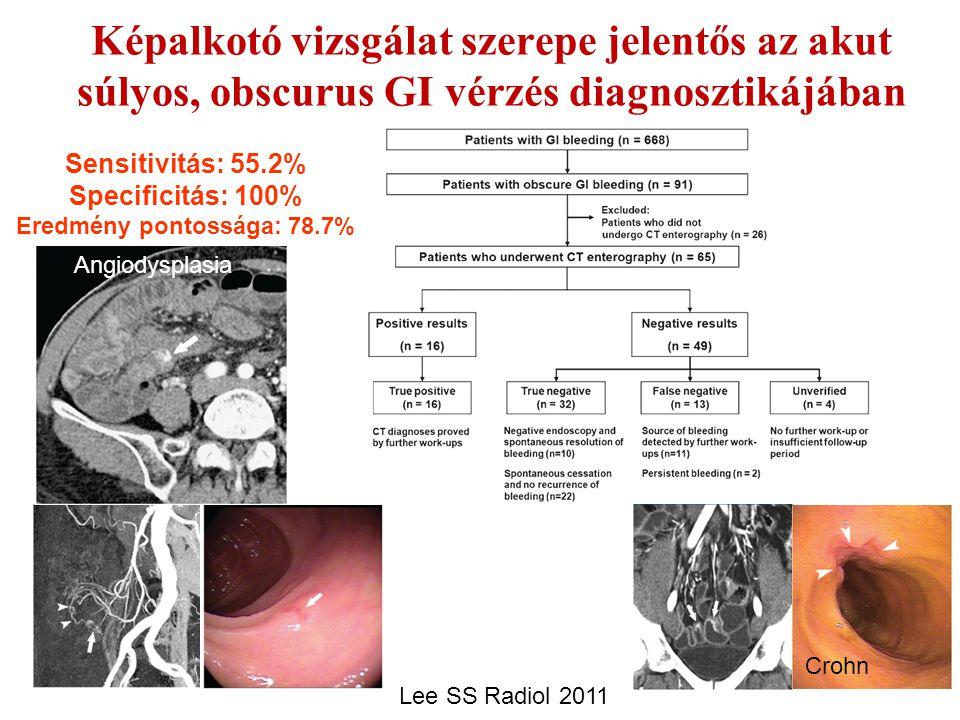 Képalkotó vizsgálat szerepe jelentős az akut súlyos, obscurus GI vérzés diagnosztikájában Lee SS Radiol 2011 Sensitivitás: 55.2% Specificitás: 100% Er