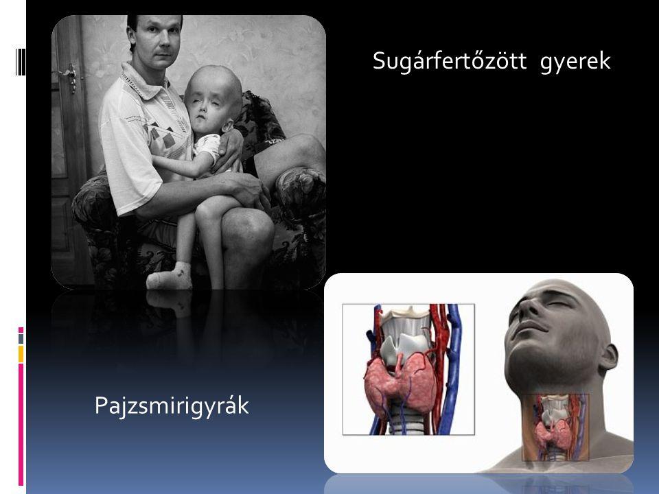 Sugárfertőzött gyerek Pajzsmirigyrák