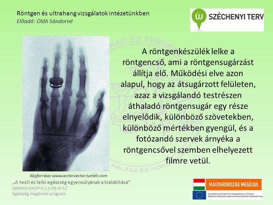 A röntgenkészülék lelke a röntgencső, ami a röntgensugárzást állítja elő.