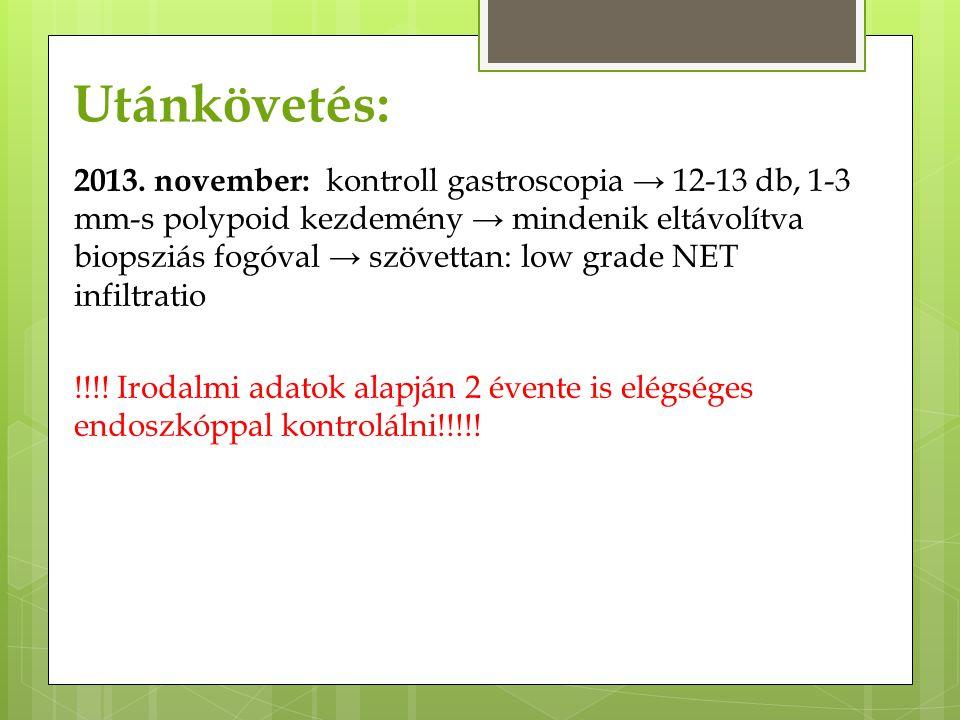 Utánkövetés: 2013. november: kontroll gastroscopia → 12-13 db, 1-3 mm-s polypoid kezdemény → mindenik eltávolítva biopsziás fogóval → szövettan: low g