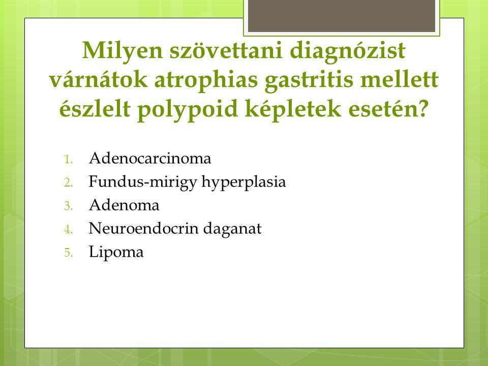 Milyen szövettani diagnózist várnátok atrophias gastritis mellett észlelt polypoid képletek esetén? 1. Adenocarcinoma 2. Fundus-mirigy hyperplasia 3.