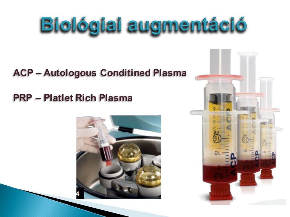 ACP – Autologous Conditined Plasma PRP – Platlet Rich Plasma ACP – Autologous Conditined Plasma PRP – Platlet Rich Plasma