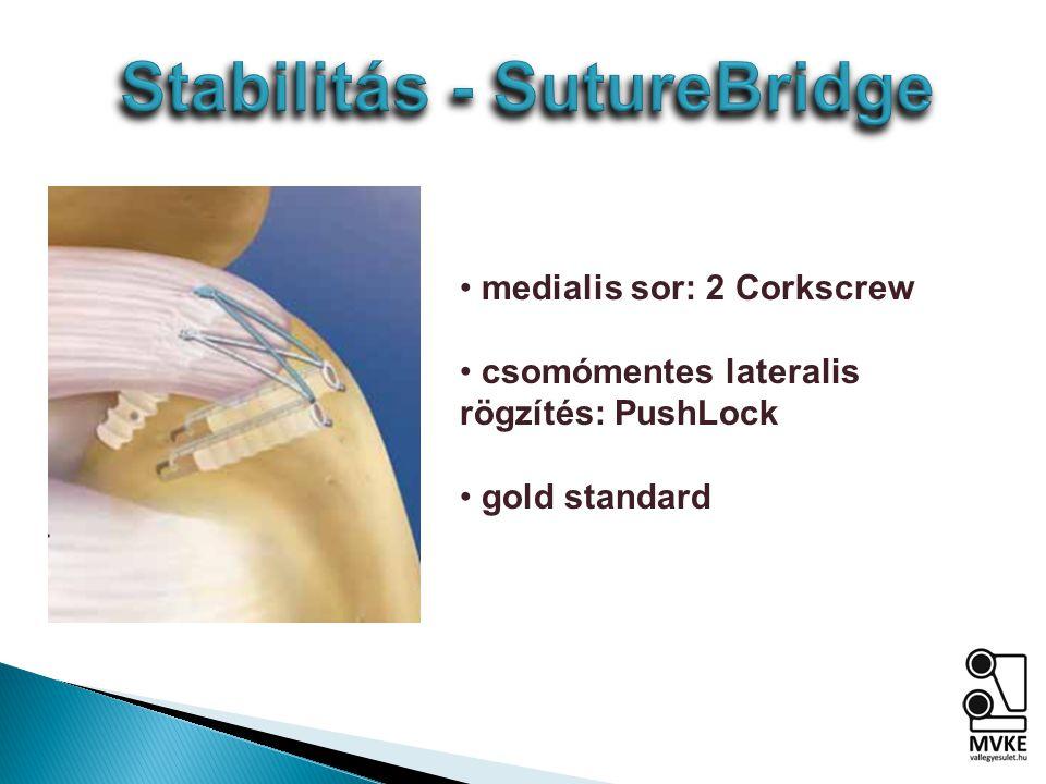 medialis sor: 2 Corkscrew csomómentes lateralis rögzítés: PushLock gold standard