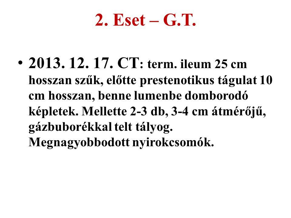 2. Eset – G.T. 2013. 12. 17. CT : term. ileum 25 cm hosszan szűk, előtte prestenotikus tágulat 10 cm hosszan, benne lumenbe domborodó képletek. Mellet