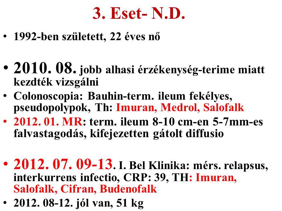 3. Eset- N.D. 1992-ben született, 22 éves nő 2010. 08. jobb alhasi érzékenység-terime miatt kezdték vizsgálni Colonoscopia: Bauhin-term. ileum fekélye