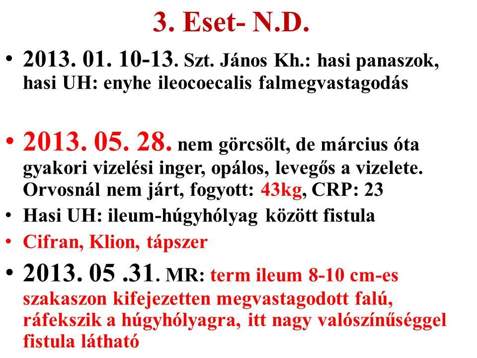 3. Eset- N.D. 2013. 01. 10-13. Szt. János Kh.: hasi panaszok, hasi UH: enyhe ileocoecalis falmegvastagodás 2013. 05. 28. nem görcsölt, de március óta