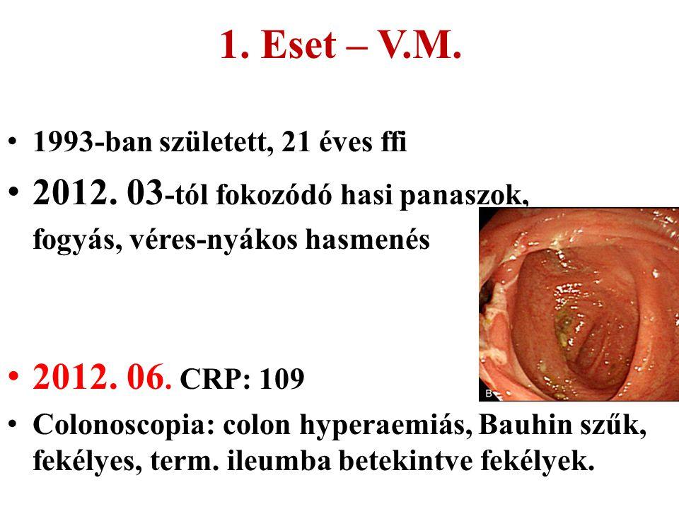 1. Eset – V.M. 1993-ban született, 21 éves ffi 2012. 03 -tól fokozódó hasi panaszok, fogyás, véres-nyákos hasmenés 2012. 06. CRP: 109 Colonoscopia: co